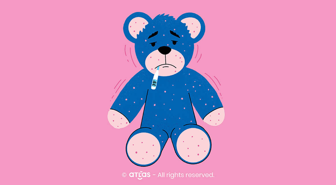 Chickenpox | Symptomatology, clinical forms and treatment